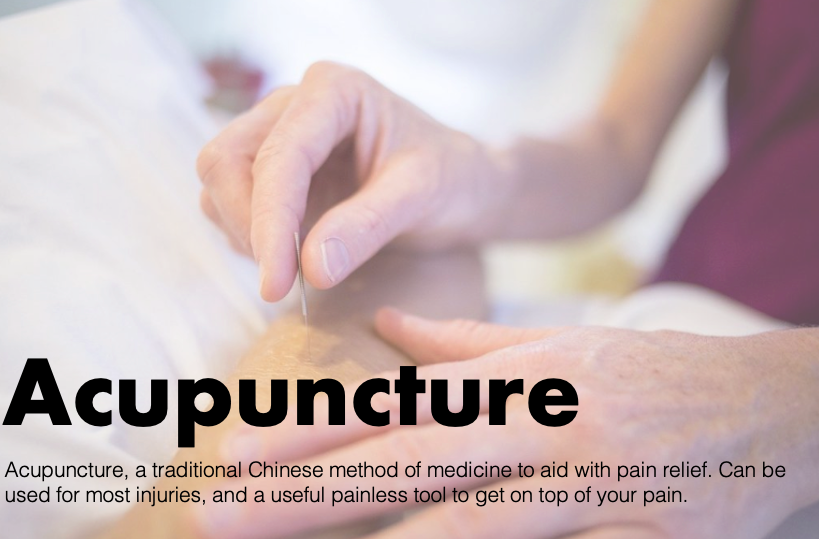 Acupuncture chelmsford